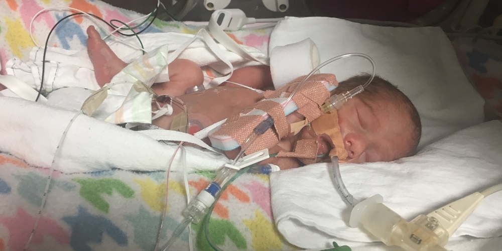 Baby Willow in NICU