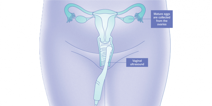 Ultrasound-guided aspiration procedure